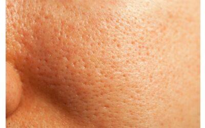 I pori dilatati rappresentano un inestetismo cutaneo piuttosto diffuso???